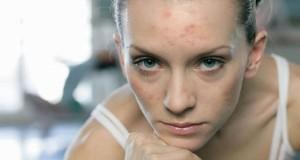 Как ухаживать за кожей лица – ежедневная программа-минимум