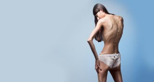 Анорексия — страшная болезнь похудения